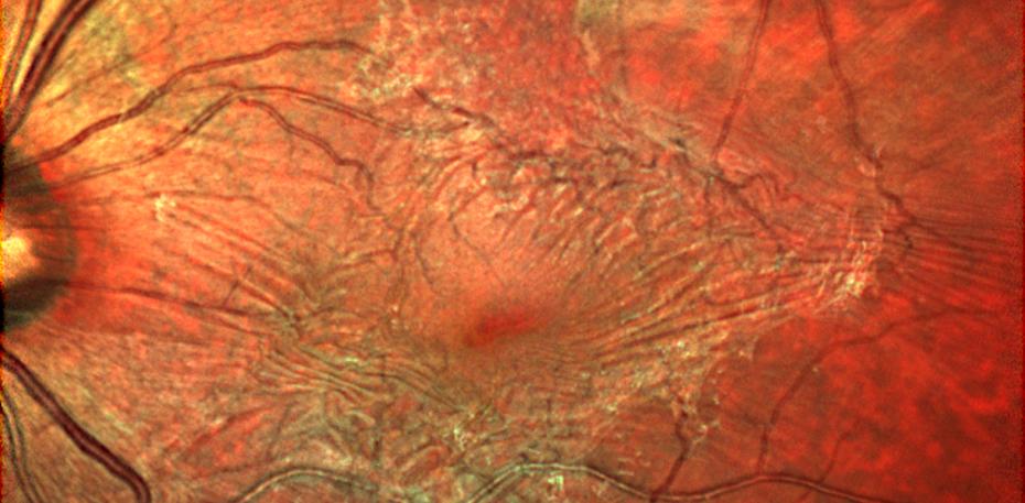 epi retinal membrane