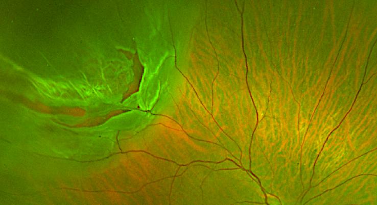 retinal tear kam balaggan