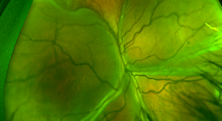 exudative Retinal detachment