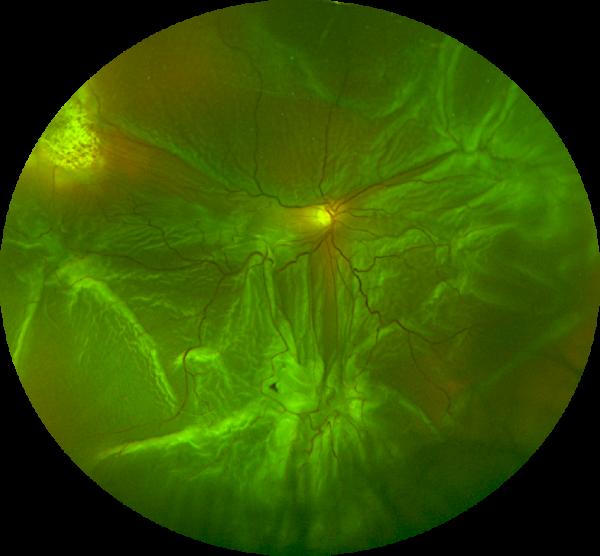 retinal detachment kam balaggan