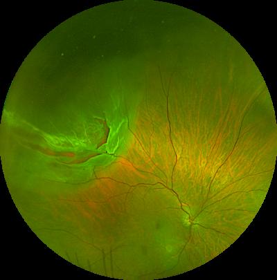 kam balaggan retinal detachment
